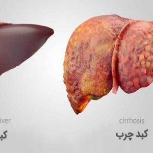 1503766724 treating fatty liver 760x400 300x300 - اسنک ها باعث کبد چرب و چاقی می شوند