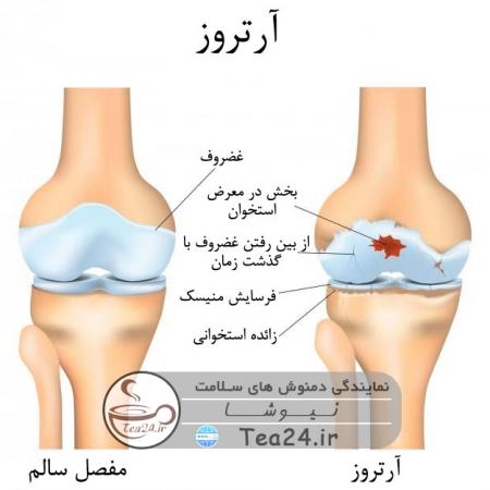 bone artros 450x450 - خوراکی های مفید برای مبارزه با آرتروز استخوان