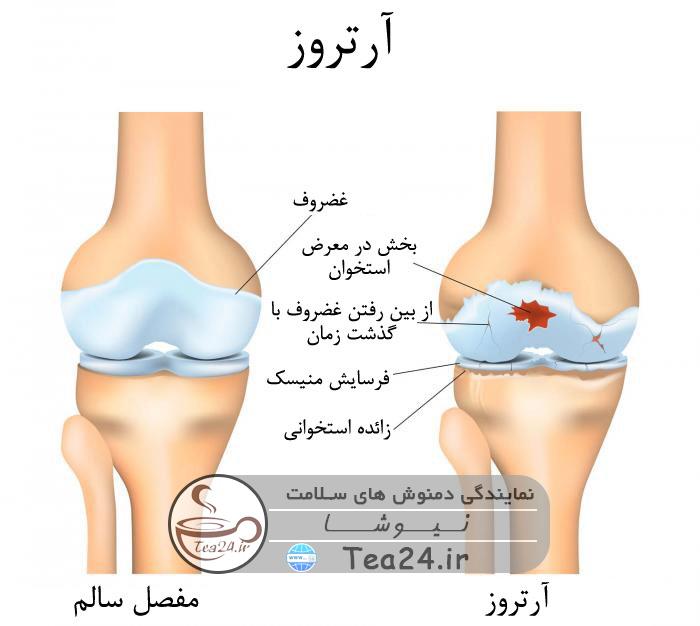 bone artros - خوراکی های مفید برای مبارزه با آرتروز استخوان