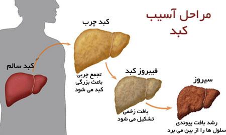 fatty liver - رژیم غذایی برای بهبود کبد چرب