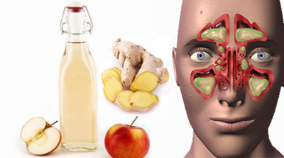 گیاهان دارویی برای سینوزیت