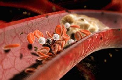 تصلب شرایین, گرفتگی رگهای خونی