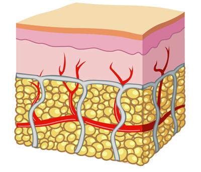 skin without cellulite - رفع سلولیت در 60 روز با دمنوش نیوشا