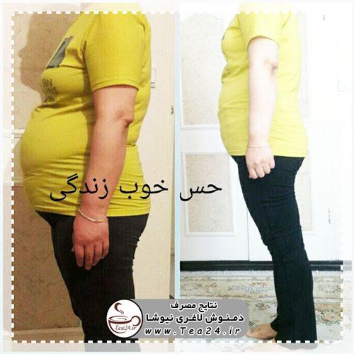 پک 40 روزه دمنوش لاغری نیوشا