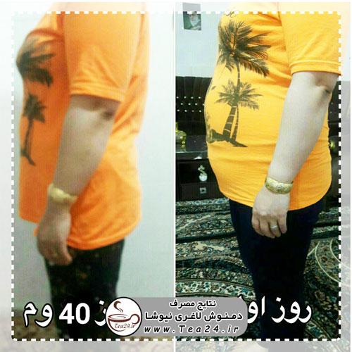 newsha slimming result 39 - پک 40 روزه دمنوش لاغری نیوشا