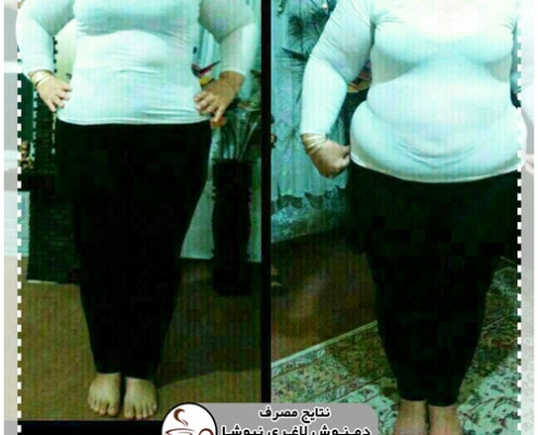 newsha slimming result 46 495x400 - بلاگ