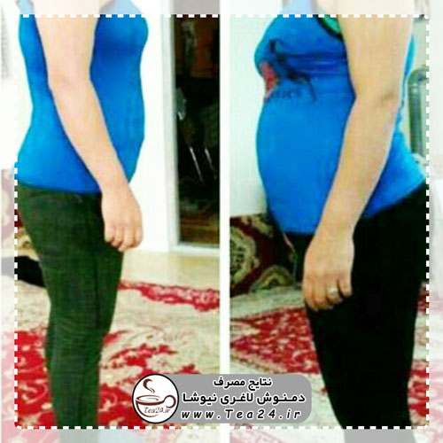 newsha-slimming-result-11