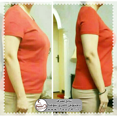 newsha-slimming-result-9