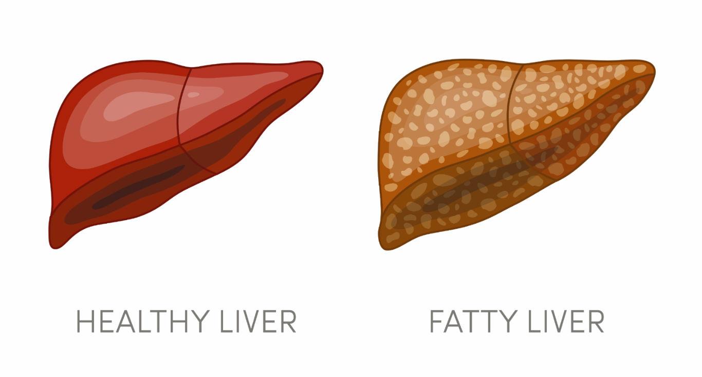 Fatty Liver What It Is - درمان کبد چرب در طب سنتی