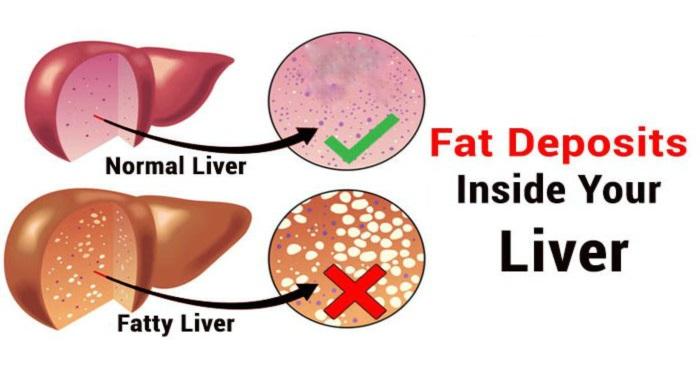 fatty liver 03 - درمان کبد چرب در طب سنتی و پزشکی نوین